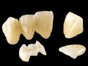 Ceramic Teeth